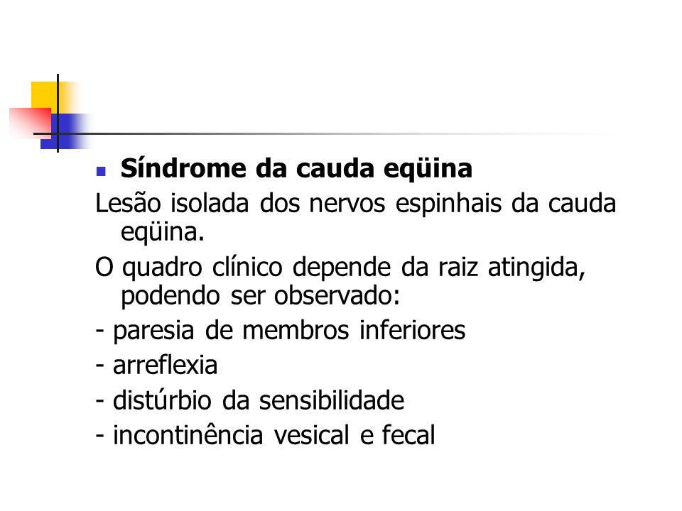Síndrome da cauda eqüina