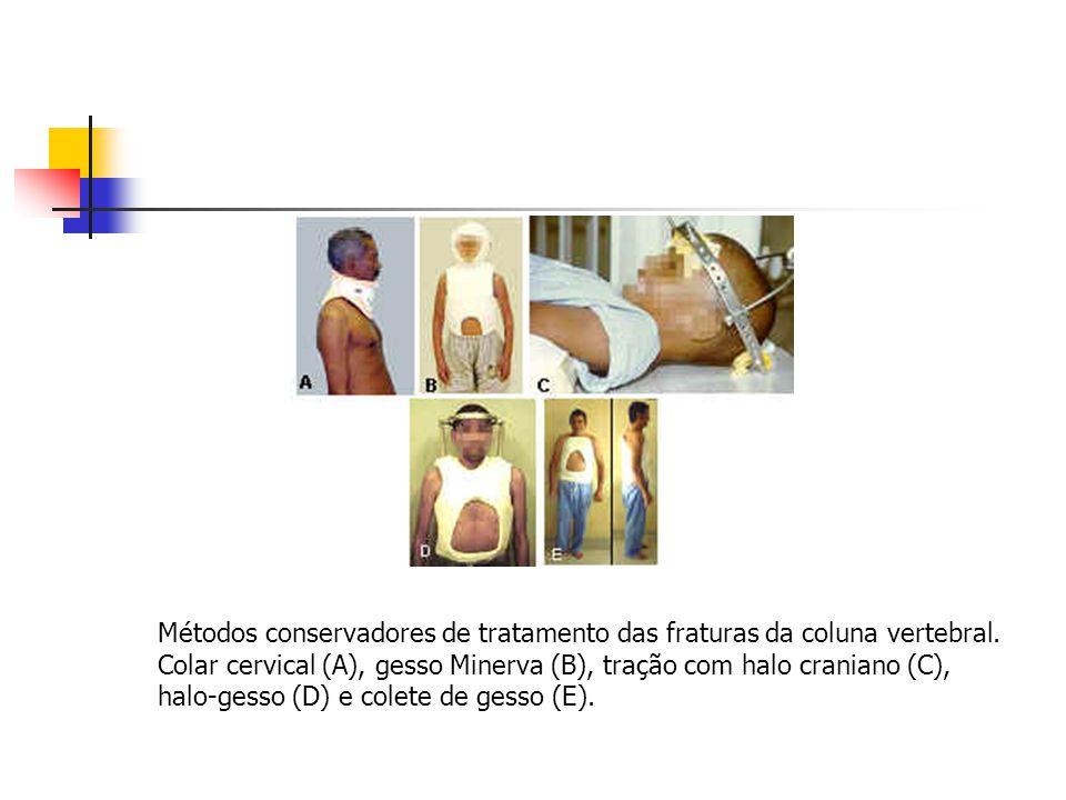 Métodos conservadores de tratamento das fraturas da coluna vertebral