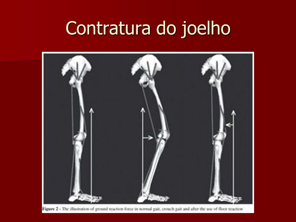 Contratura do joelho