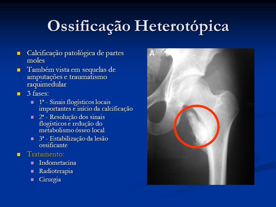 Ossificação Heterotópica