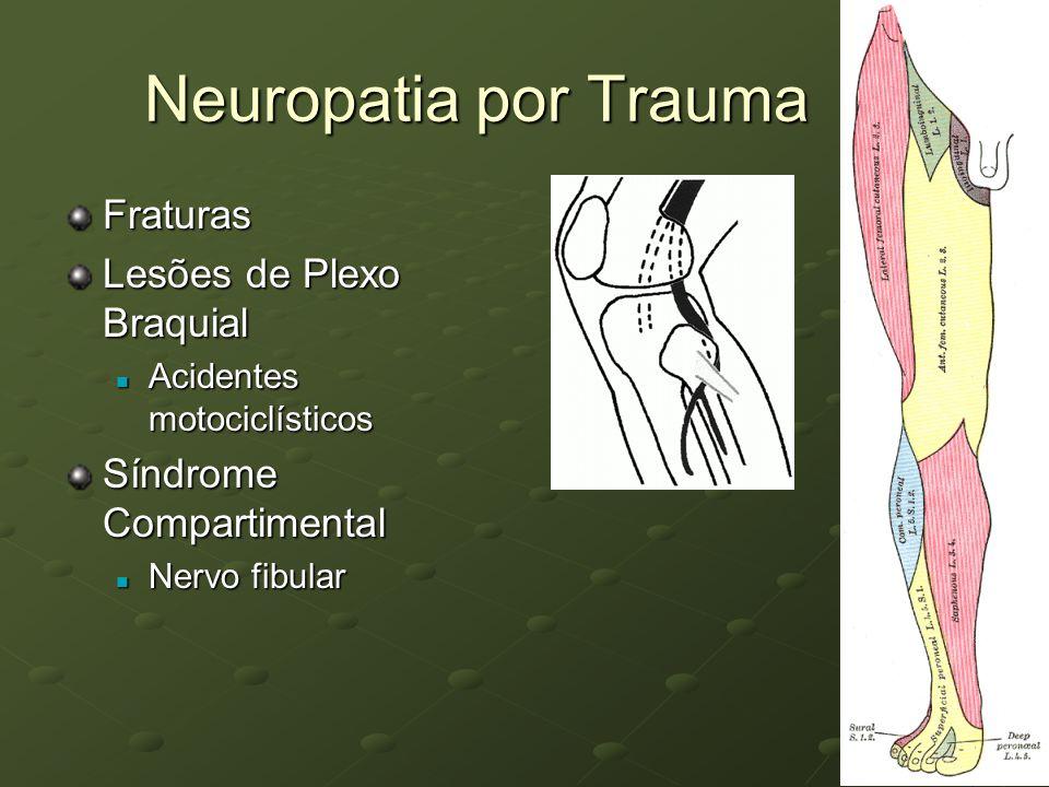 Neuropatia por Trauma Fraturas Lesões de Plexo Braquial