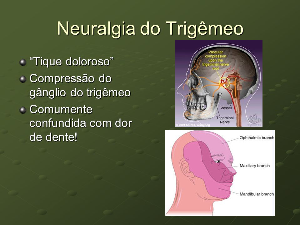 Neuralgia do Trigêmeo Tique doloroso