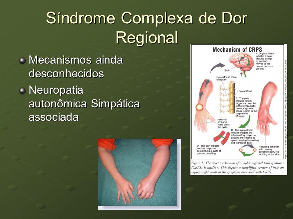 Síndrome Complexa de Dor Regional