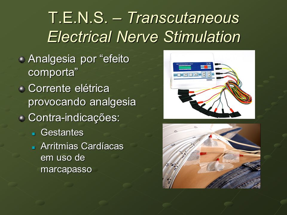 T.E.N.S. – Transcutaneous Electrical Nerve Stimulation