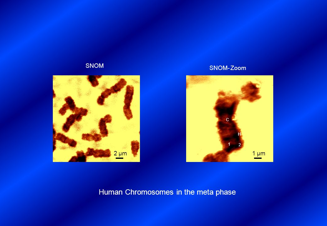 Human Chromosomes in the meta phase