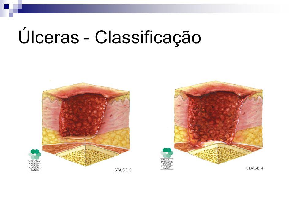 Úlceras - Classificação