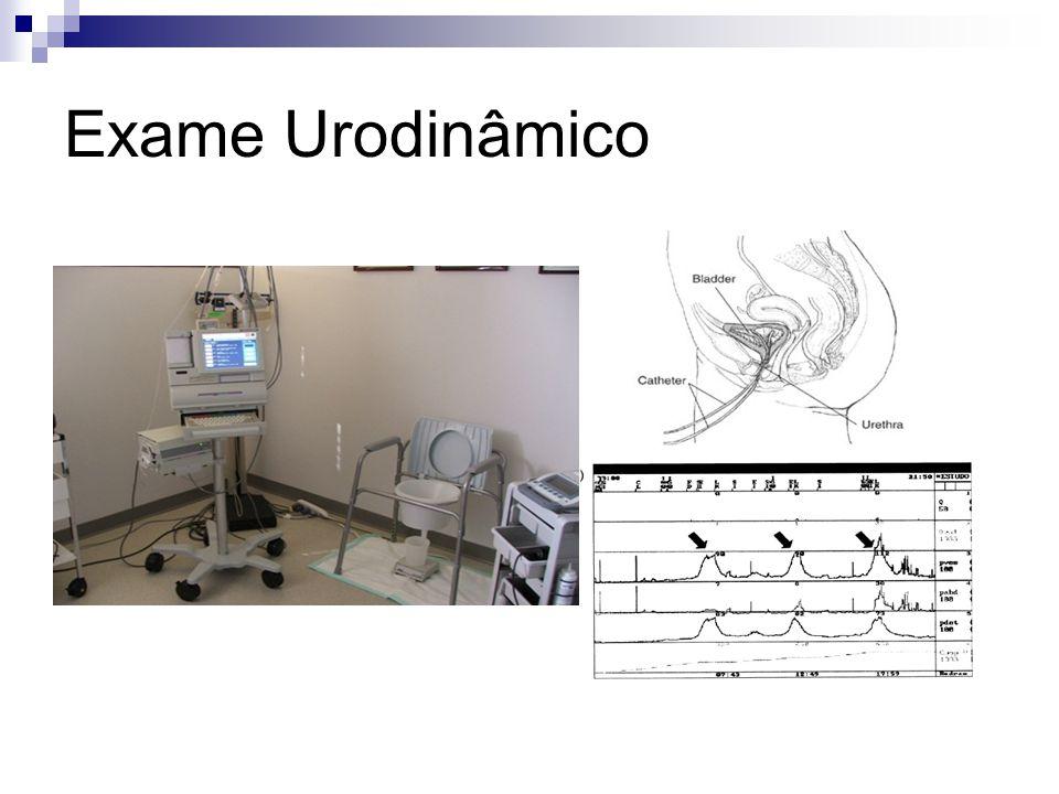 Exame Urodinâmico