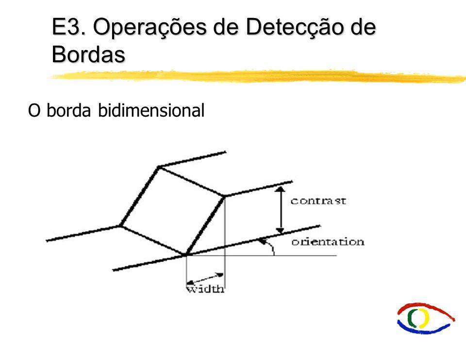 E3. Operações de Detecção de Bordas