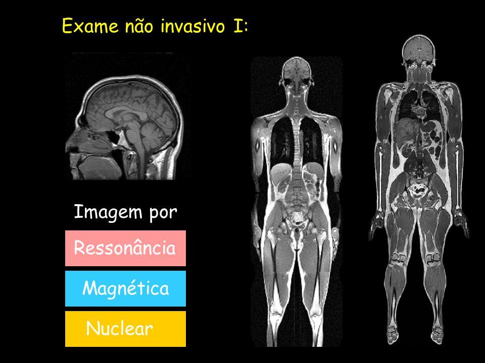 Exame não invasivo I: Imagem por Ressonância Magnética Nuclear