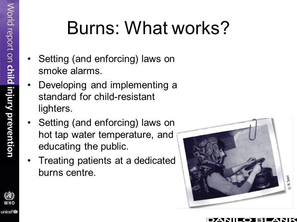 Burns: What works Setting (and enforcing) laws on smoke alarms.
