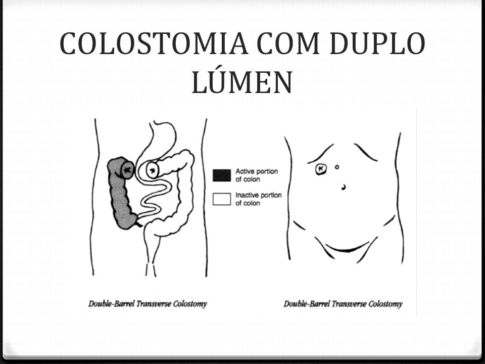 COLOSTOMIA COM DUPLO LÚMEN