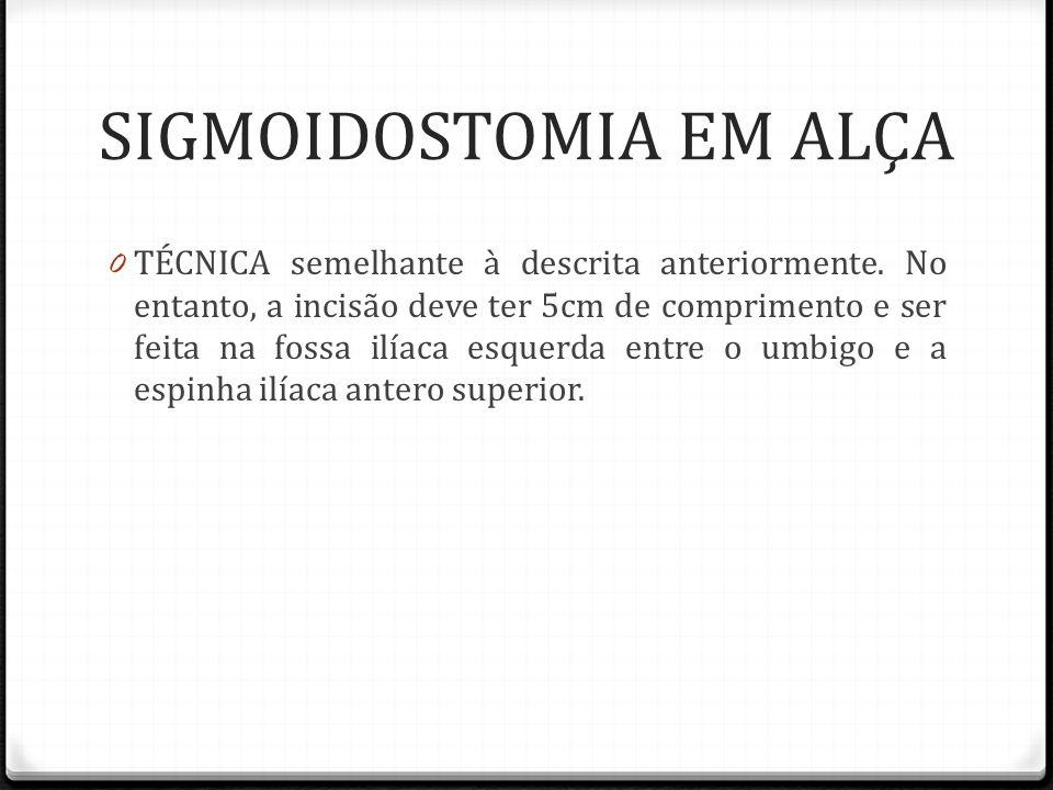 SIGMOIDOSTOMIA EM ALÇA