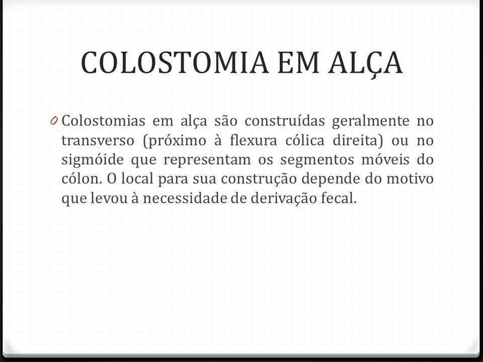 COLOSTOMIA EM ALÇA