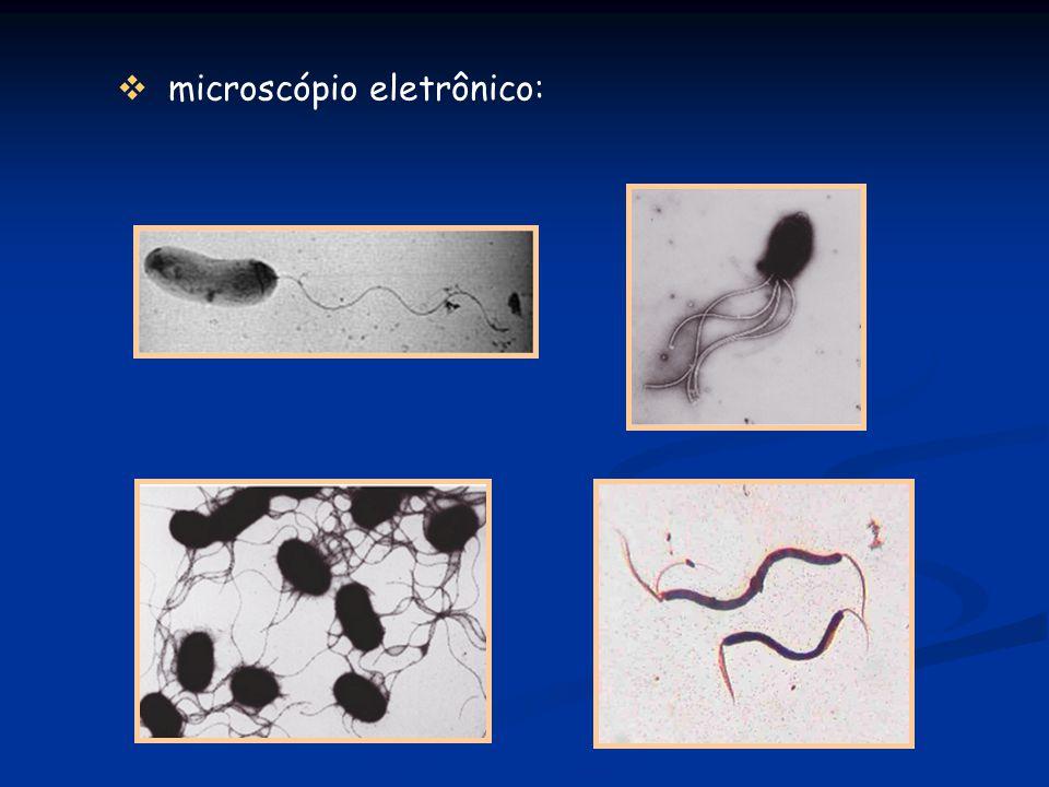 microscópio eletrônico: