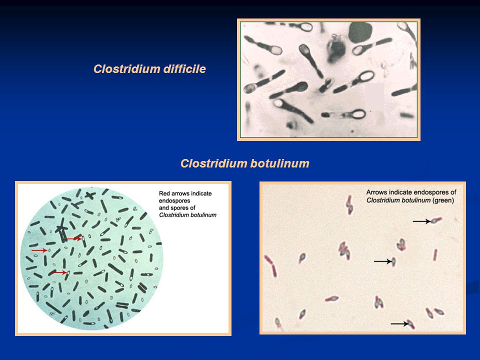 Clostridium difficile Clostridium botulinum