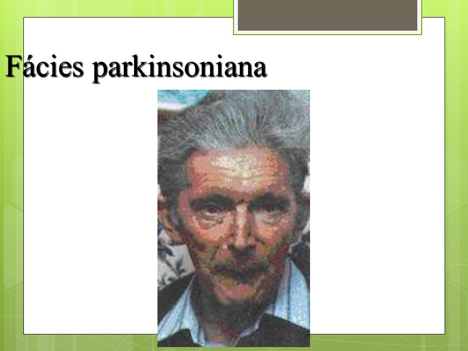 Fácies parkinsoniana