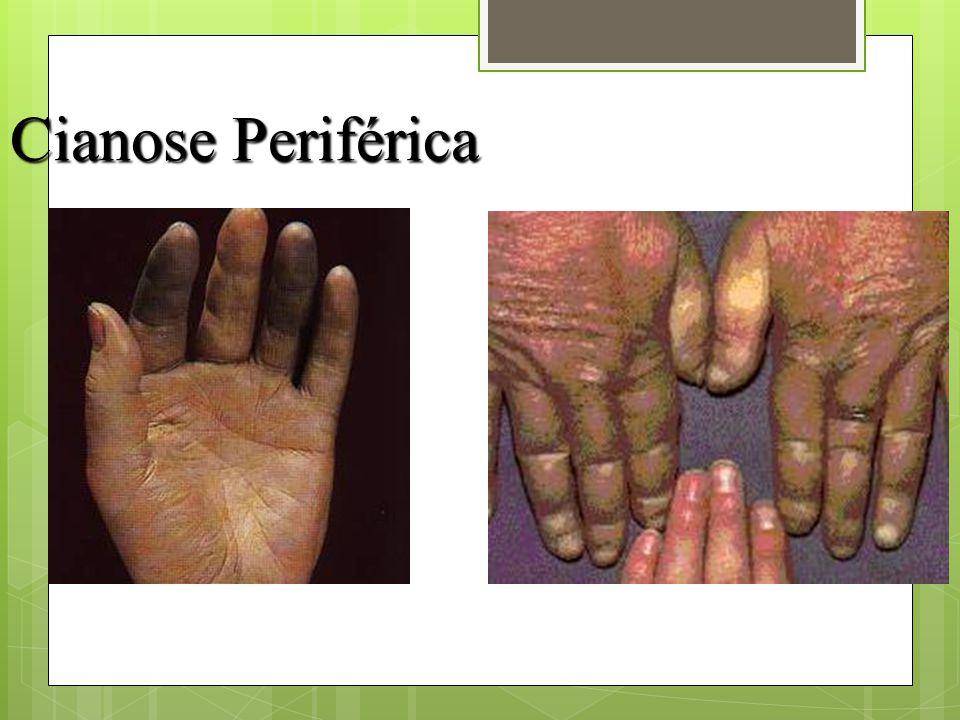 Cianose Periférica