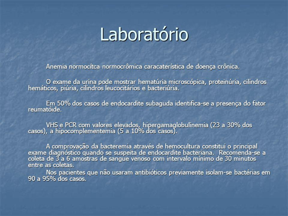 Laboratório Anemia normocítca normocrômica caracaterística de doença crônica.