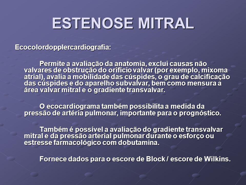 ESTENOSE MITRAL Ecocolordopplercardiografia: