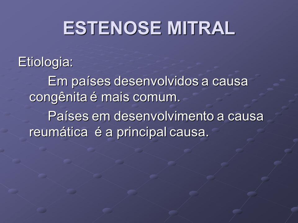 ESTENOSE MITRAL Etiologia: