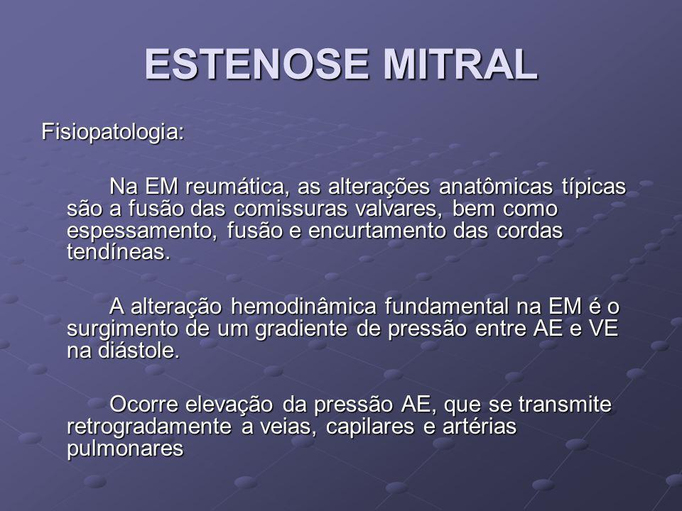 ESTENOSE MITRAL Fisiopatologia: