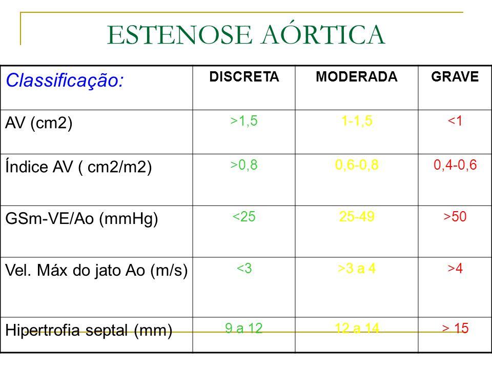 ESTENOSE AÓRTICA Classificação: AV (cm2) Índice AV ( cm2/m2)