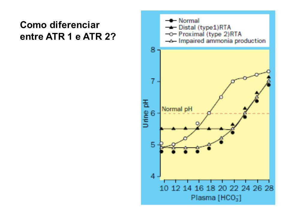 Como diferenciar entre ATR 1 e ATR 2