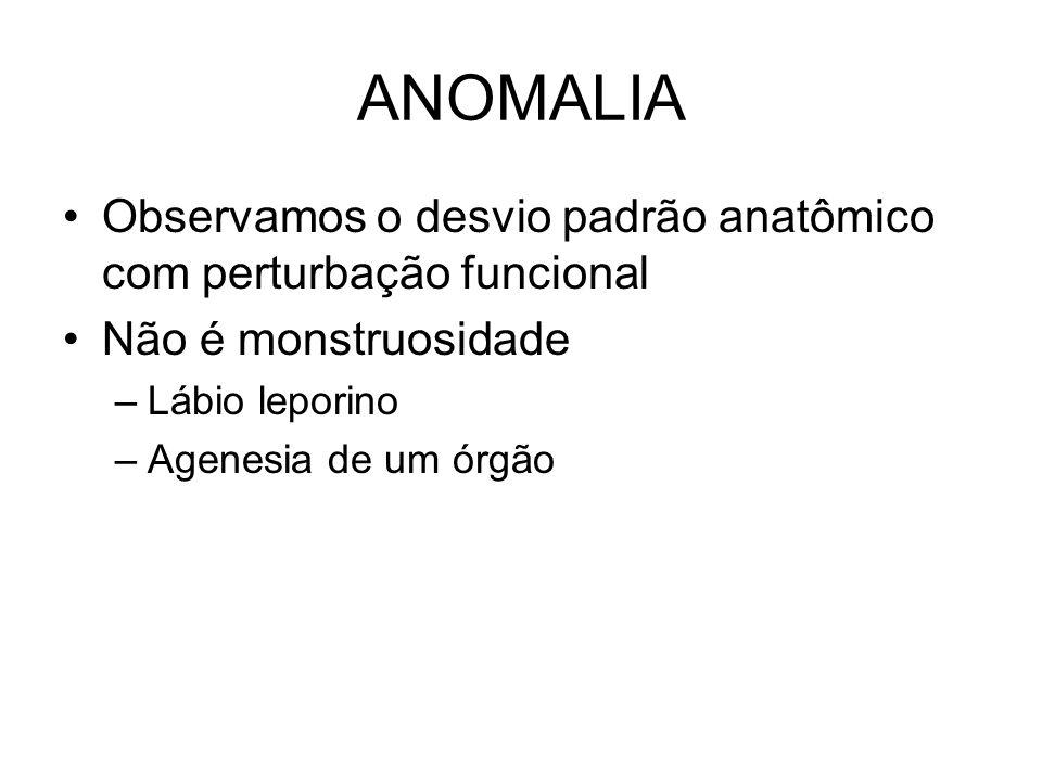 ANOMALIA Observamos o desvio padrão anatômico com perturbação funcional. Não é monstruosidade. Lábio leporino.