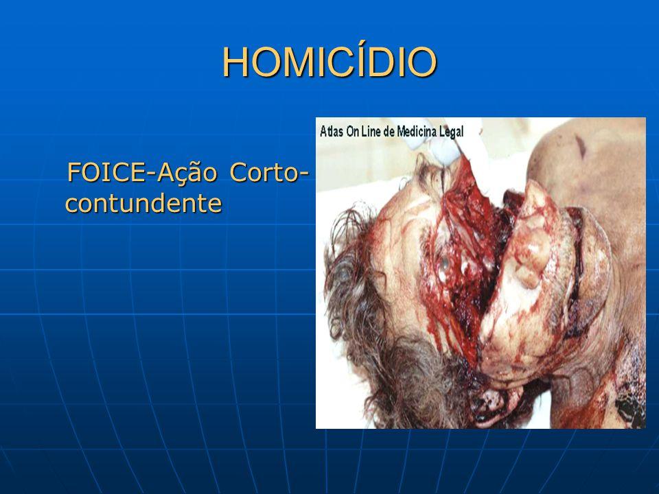 HOMICÍDIO FOICE-Ação Corto-contundente