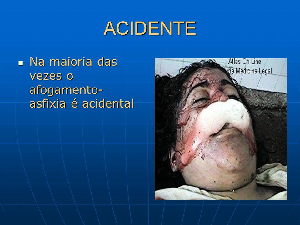 ACIDENTE Na maioria das vezes o afogamento- asfixia é acidental