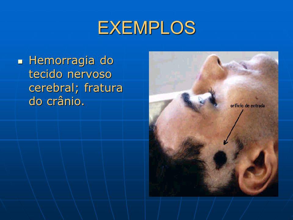 EXEMPLOS Hemorragia do tecido nervoso cerebral; fratura do crânio.