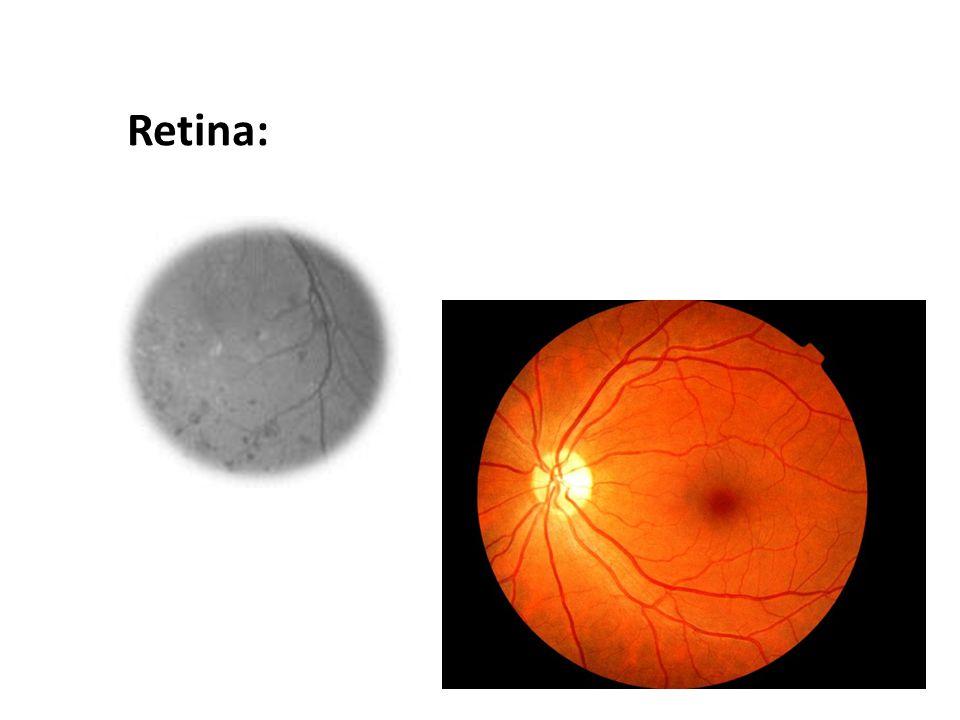 Retina: