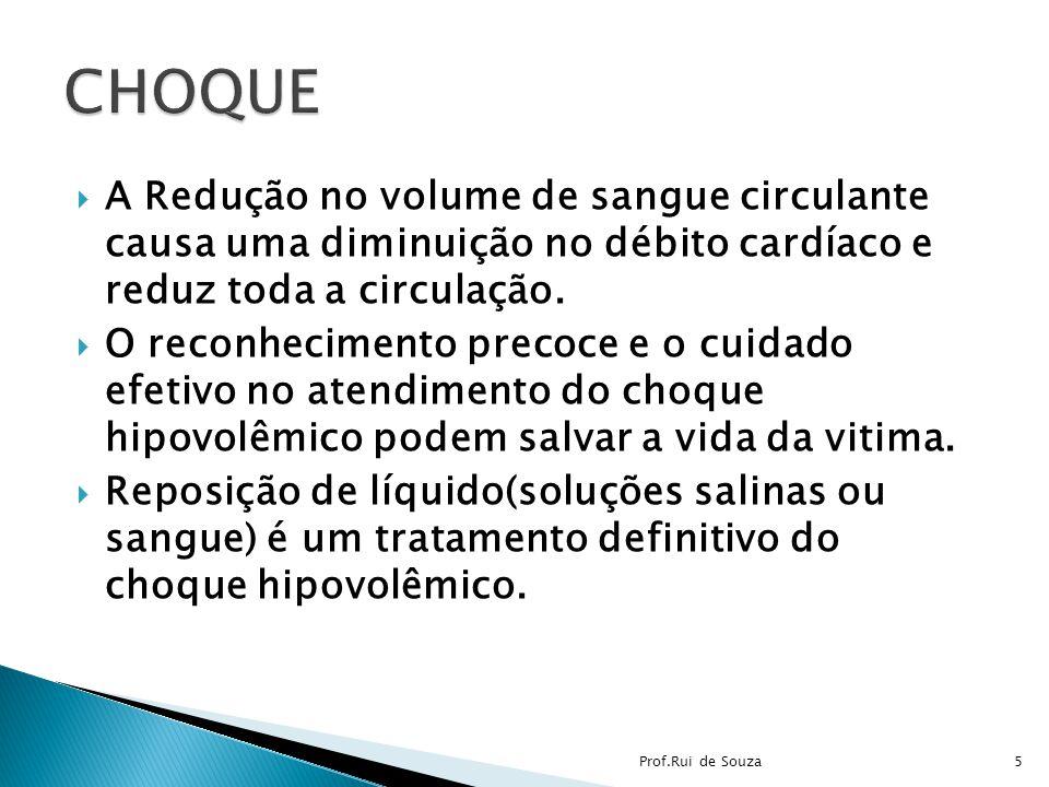 CHOQUE A Redução no volume de sangue circulante causa uma diminuição no débito cardíaco e reduz toda a circulação.