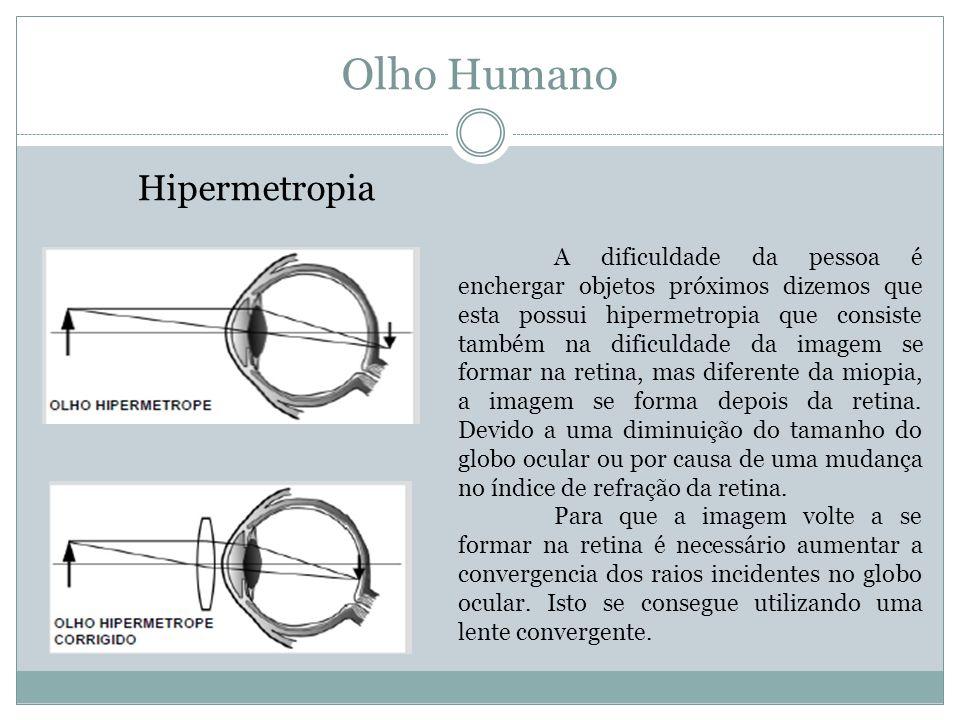 Olho Humano Hipermetropia