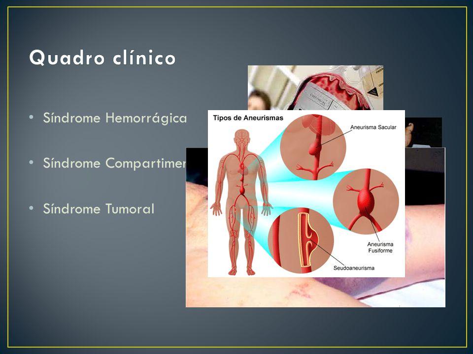 Quadro clínico Síndrome Hemorrágica Síndrome Compartimental