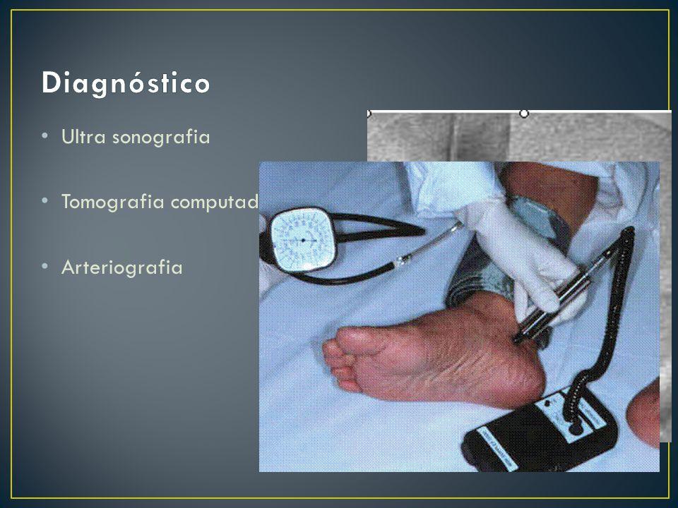 Diagnóstico Ultra sonografia Tomografia computadorizada Arteriografia