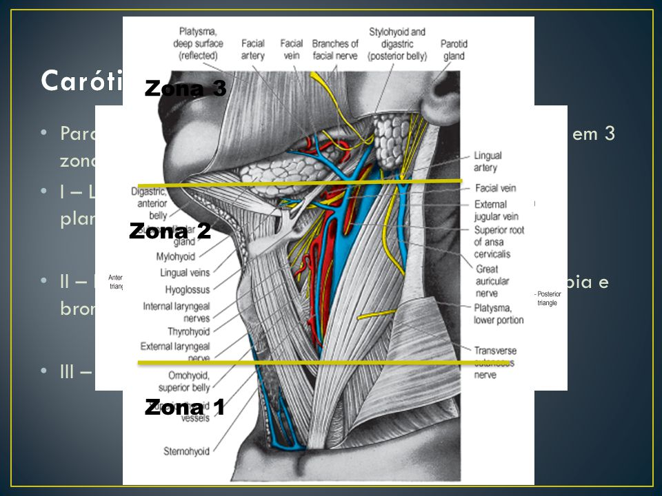 Carótida Zona 3. Para diagnóstico há a divisão da região cervical anterior em 3 zonas: