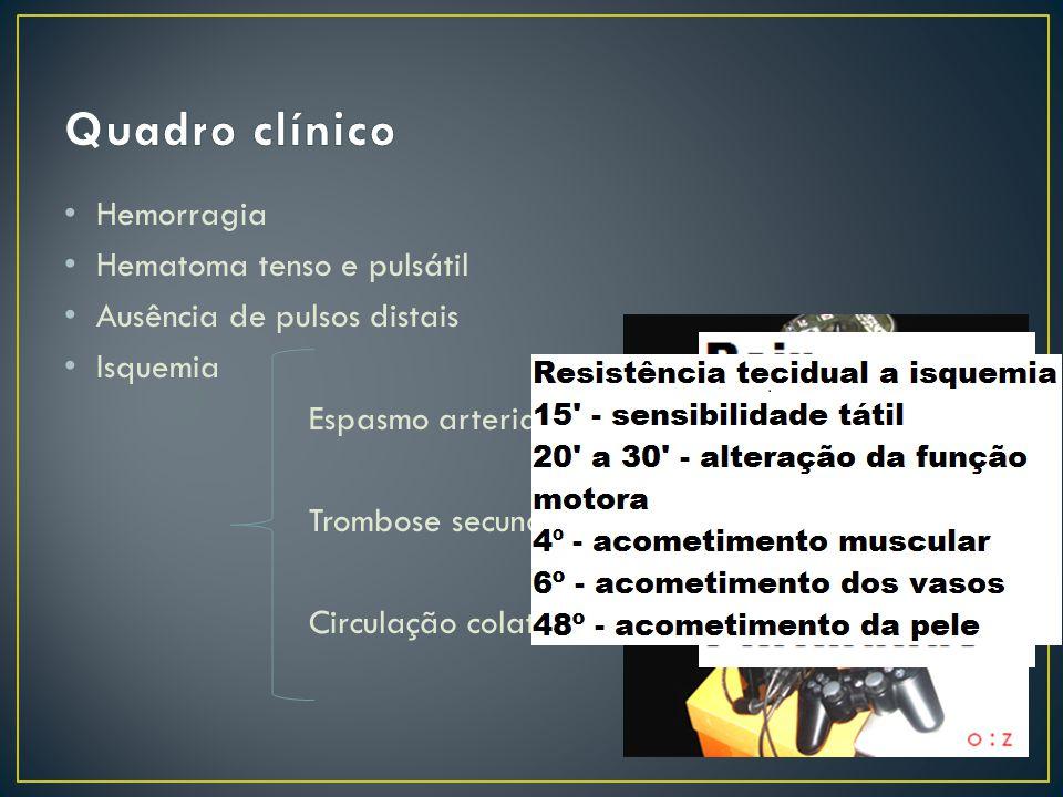 Quadro clínico Hemorragia Hematoma tenso e pulsátil