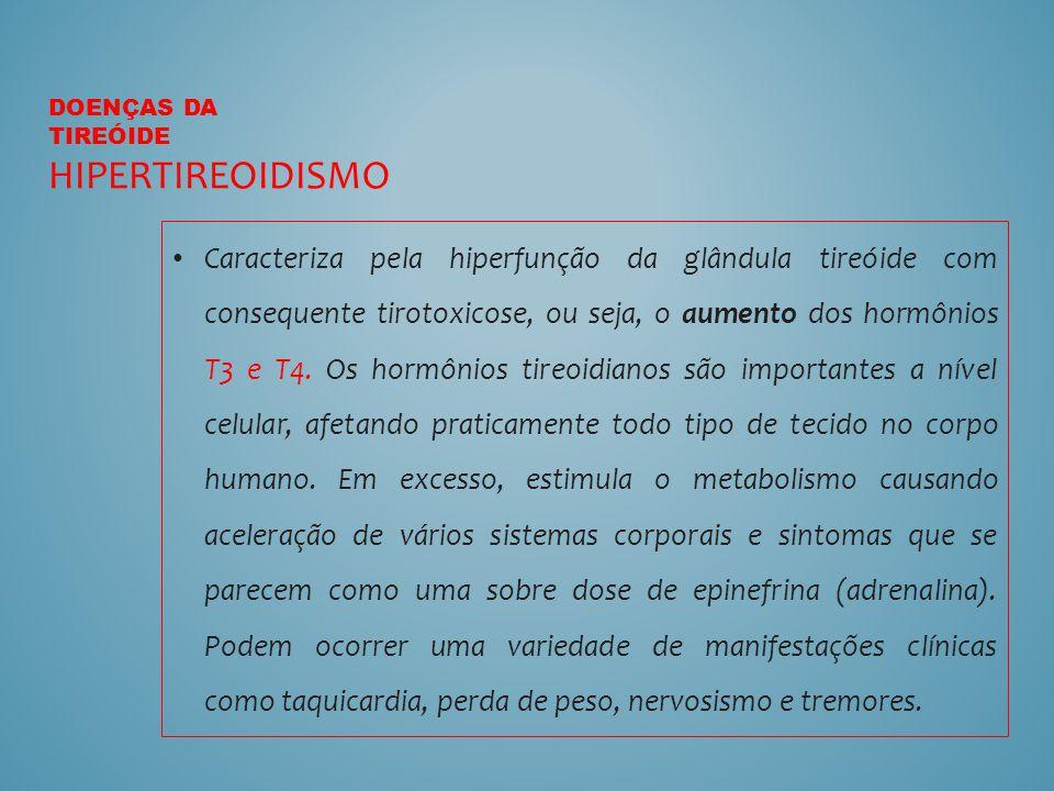 Doenças da tireóide Hipertireoidismo