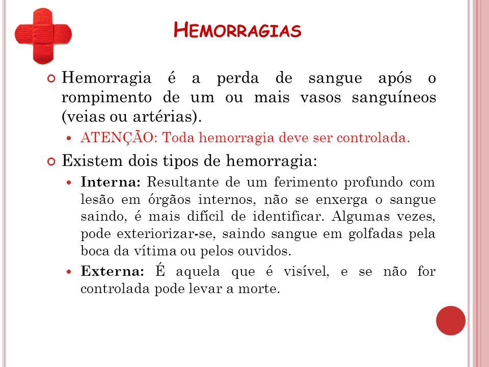 Hemorragias Hemorragia é a perda de sangue após o rompimento de um ou mais vasos sanguíneos (veias ou artérias).