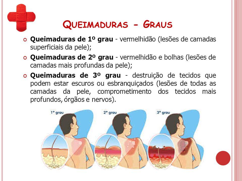 Queimaduras - Graus Queimaduras de 1º grau - vermelhidão (lesões de camadas superficiais da pele);