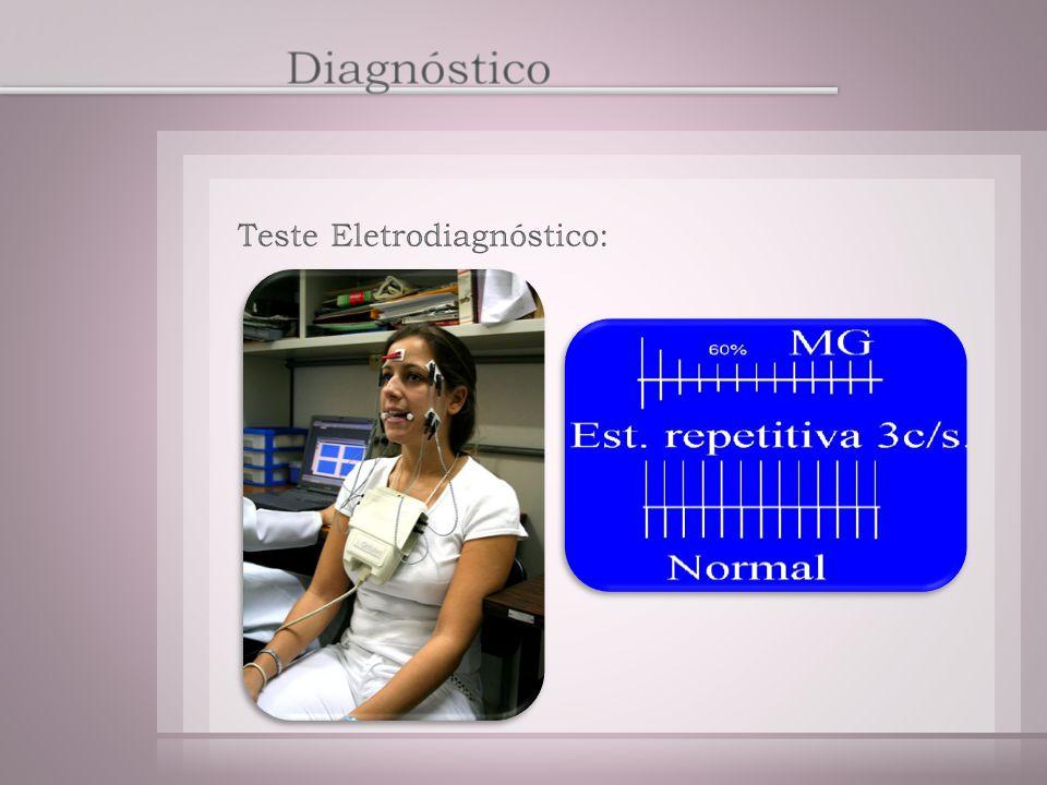 Diagnóstico Teste Eletrodiagnóstico: