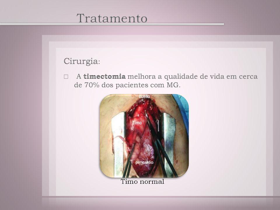 Tratamento Cirurgia: A timectomia melhora a qualidade de vida em cerca de 70% dos pacientes com MG.