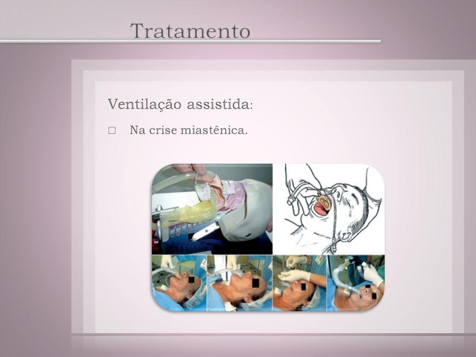 Tratamento Ventilação assistida: Na crise miastênica.