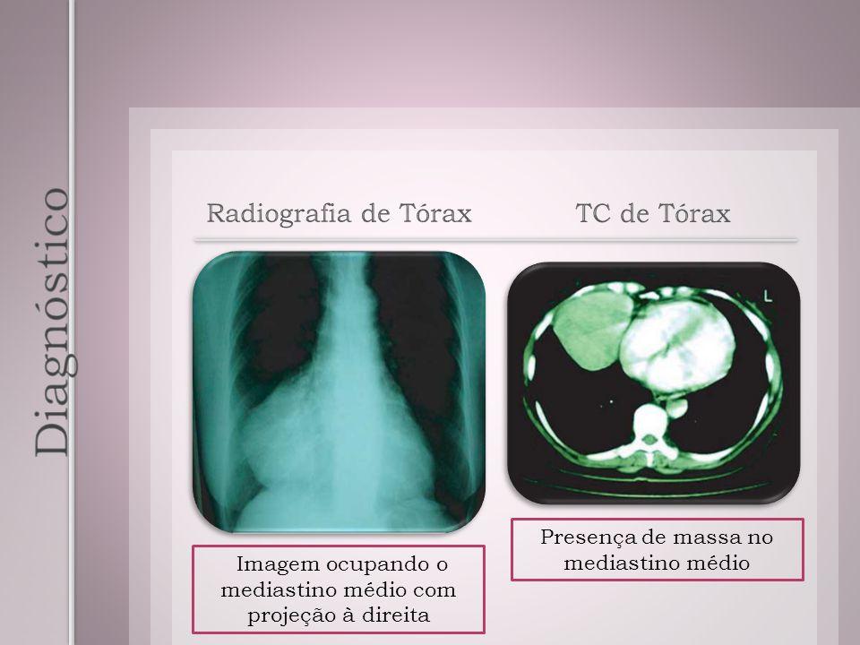 Diagnóstico Radiografia de Tórax TC de Tórax