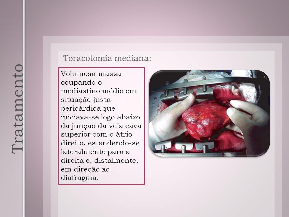 Tratamento Toracotomia mediana: