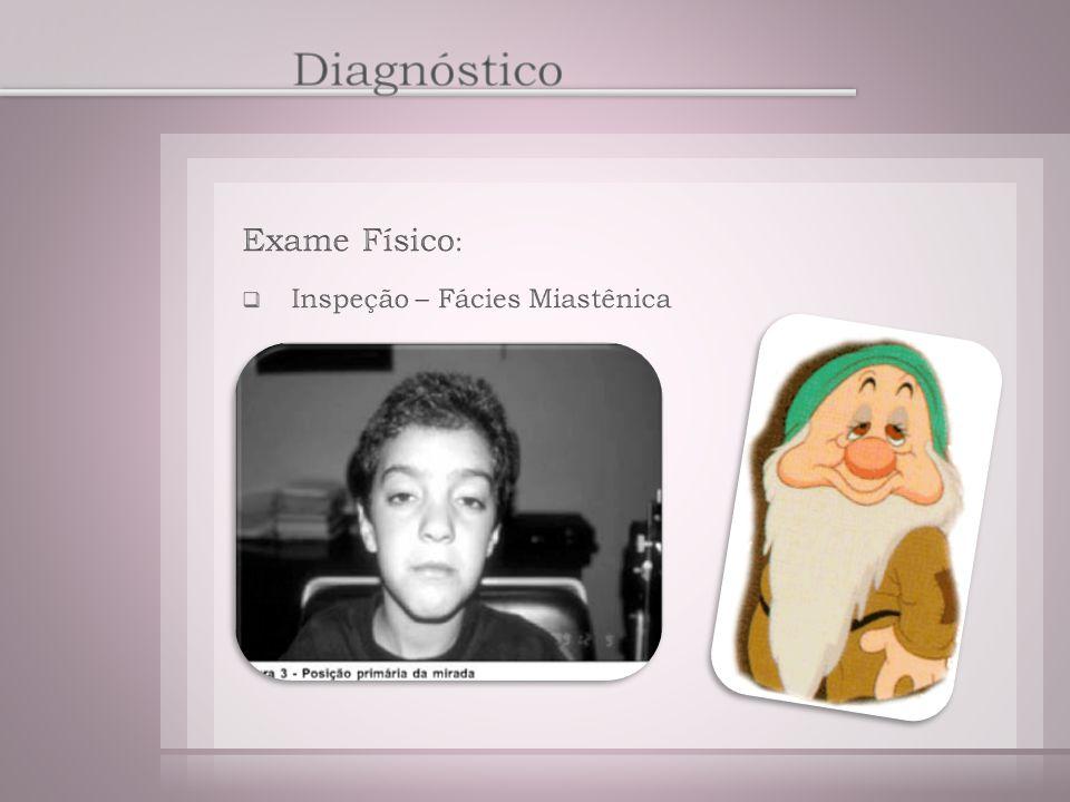 Diagnóstico Exame Físico: Inspeção – Fácies Miastênica