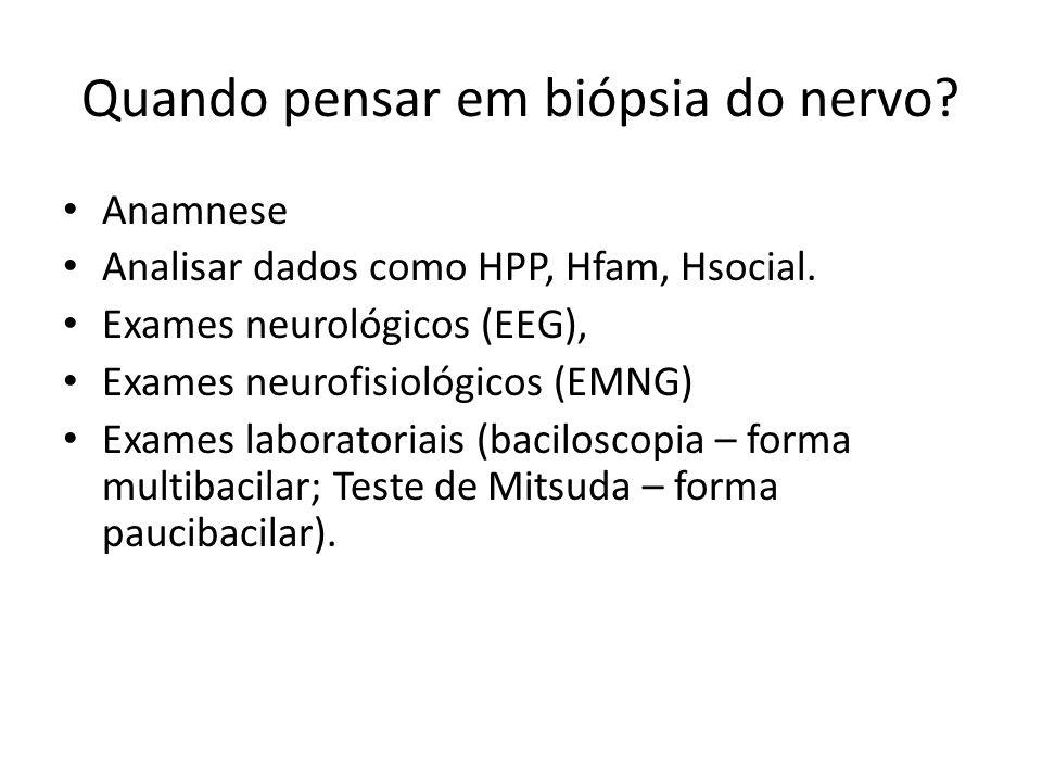 Quando pensar em biópsia do nervo