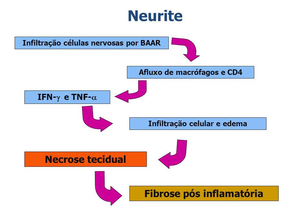 Neurite Necrose tecidual Fibrose pós inflamatória IFN-g e TNF-a