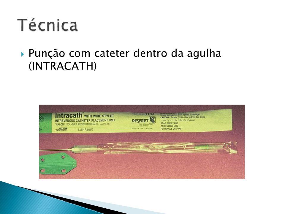 Técnica Punção com cateter dentro da agulha (INTRACATH)
